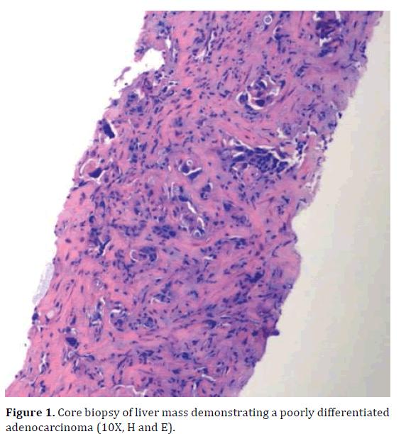 pancreas-demonstrating