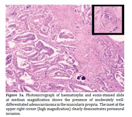 pancreas-haematoxylin
