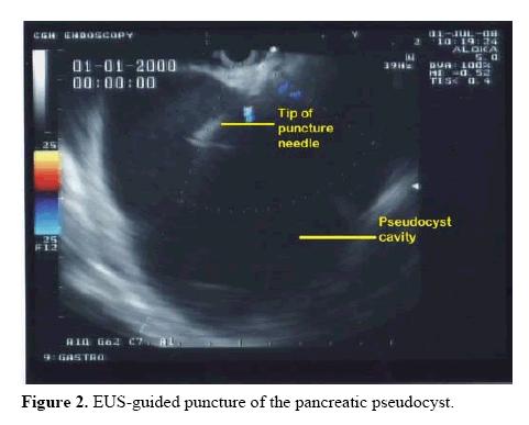 pancreas-pancreatic-pseudocyst