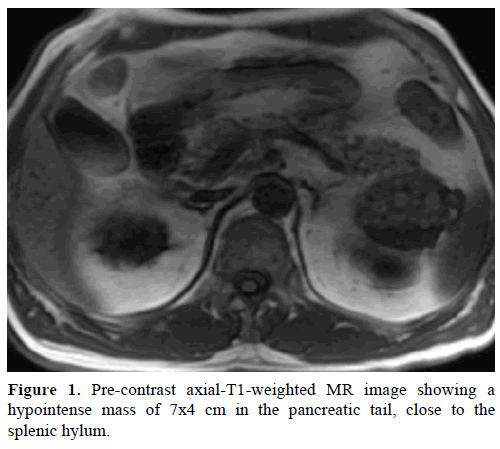 pancreas-pre-contrast-axial-t1-weighted
