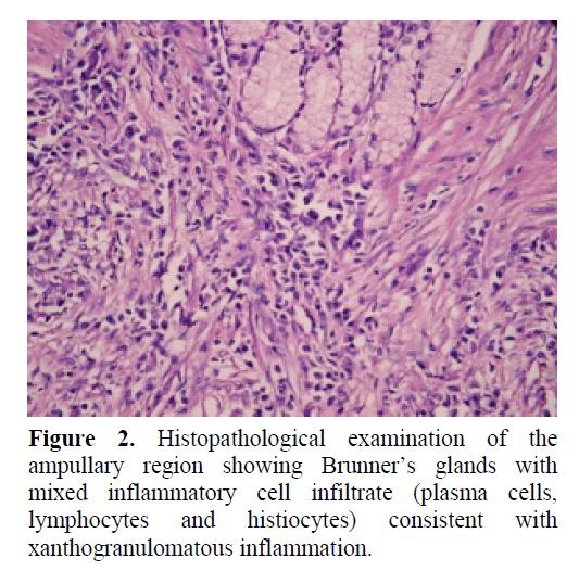 pancreas-xanthogranulomatous-inflammation